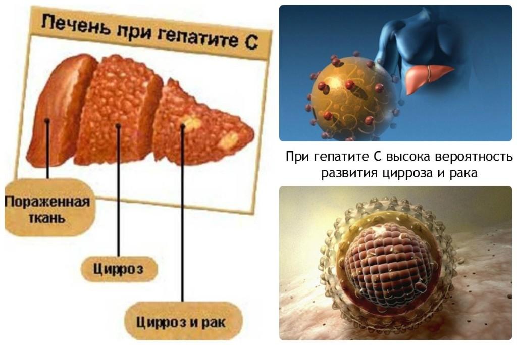 При гепатите С высока вероятность развития цирроза и рака