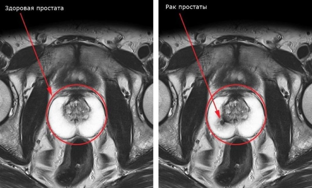 Исследование рака с помощью МРТ