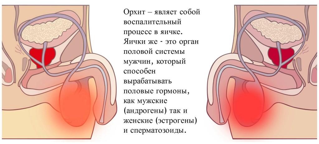 Описание орхита