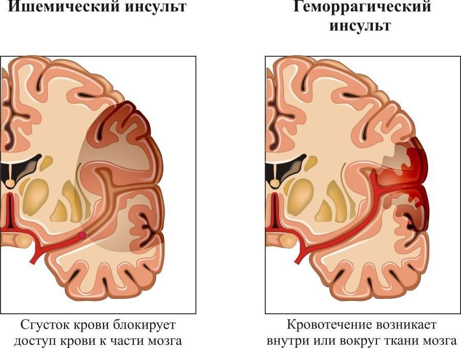Схема поражения мозга при инсульте
