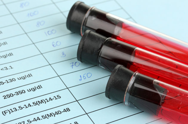 Повышенная свёртываемость крови, анализы