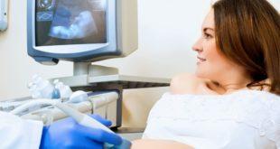 УЗИ при беременности