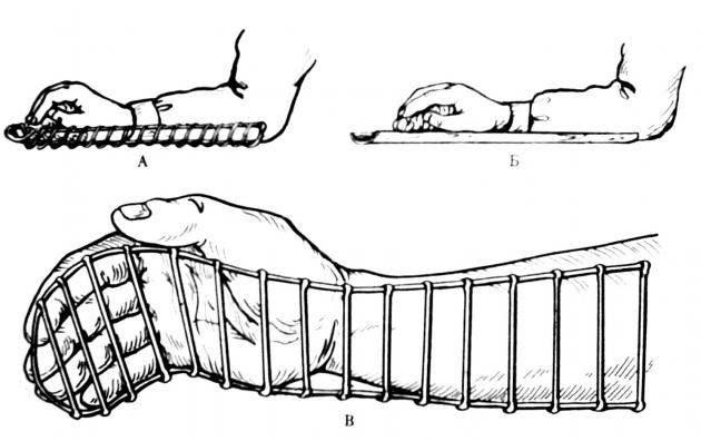 Иммобилизация (обездвижение) перелома руки шиной Крамера
