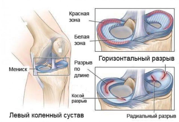 Коленный сустав (схема)