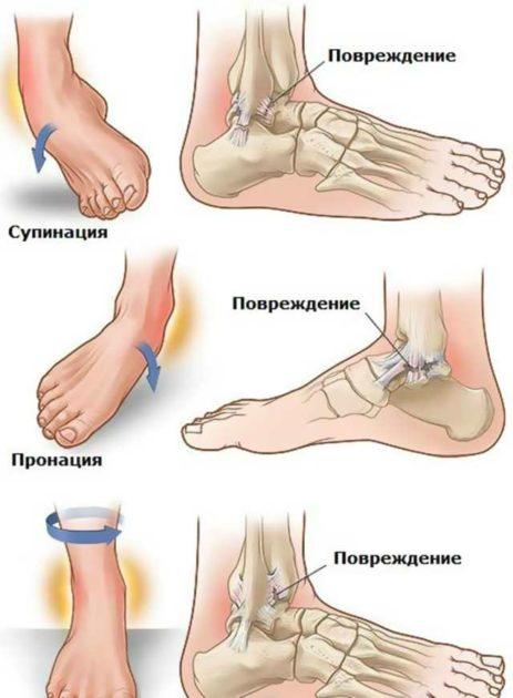 Механизм повреждения голеностопа: схема