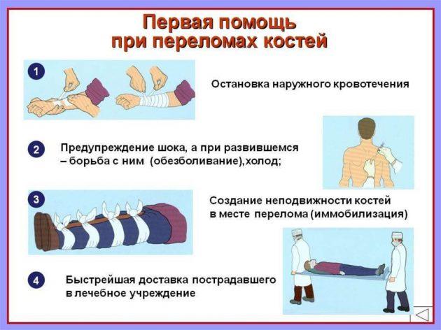 Неотложная помощь при переломах