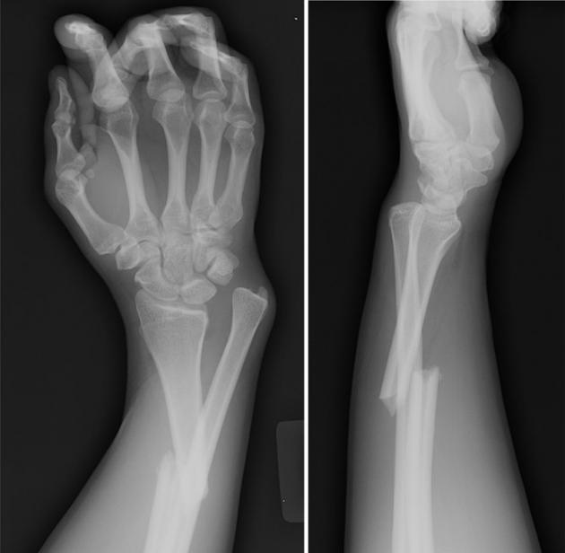 Рентгеновская картина при переломе костей предплечья