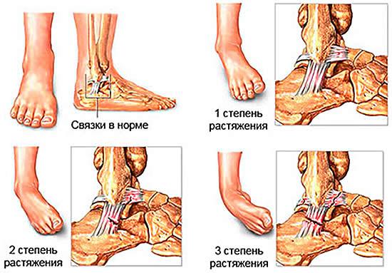 Степени растяжения сухожилий и мышц