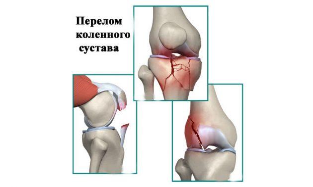 Внутрисуставной перелом (схема)