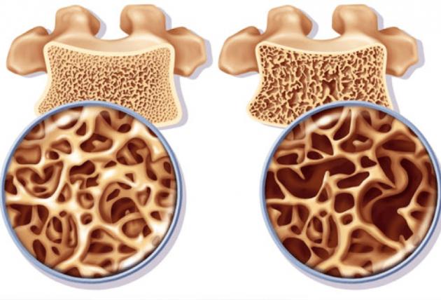 Здоровый позвонок и поражённый остеопорозом