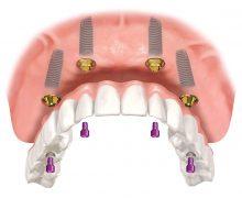 Зубное протезирование All-On-4