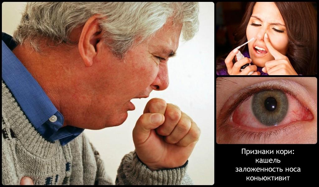 Первые признаки кори: кашель, заложенность носа, коньюктивит