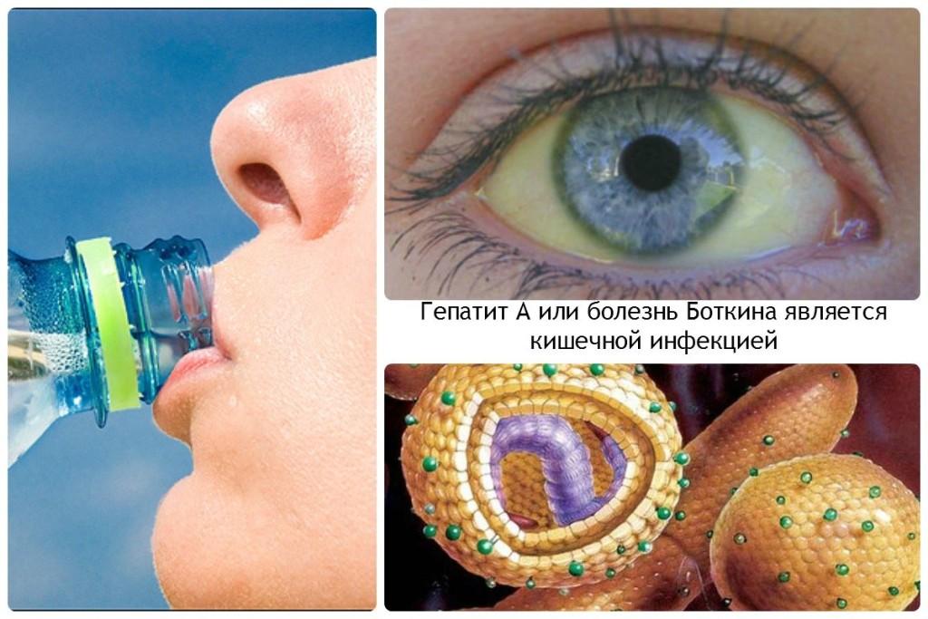 Гепатит А или болезнь Боткина является кишечной инфекцией