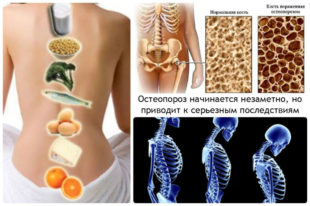 Остеопороз начинается незаметно, но приводит к серьезным последствиям