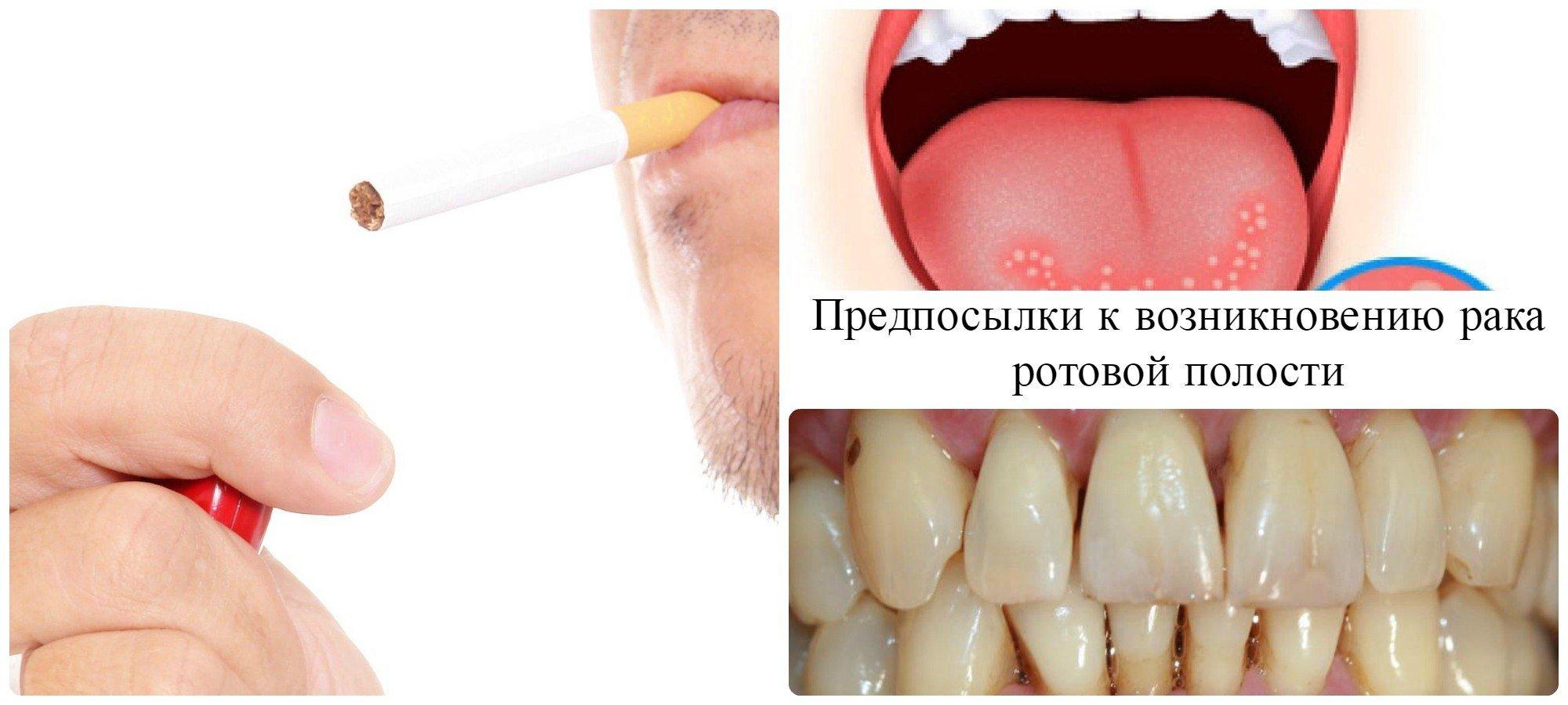 Возможные симптомы возникновения рака полости рта