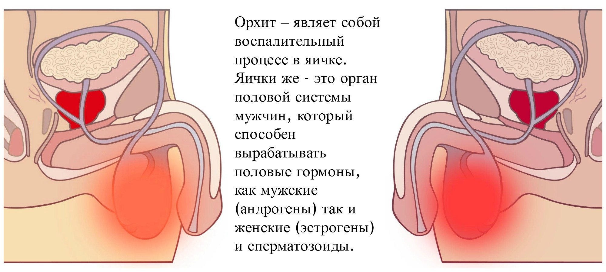 masturbirovat-pri-epididimite