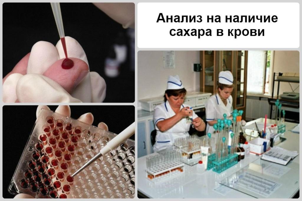 Анализ на наличие сахара в крови