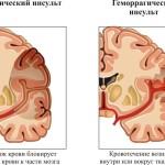 1426242984_shema-porazheniya-mozga-pri-insulte