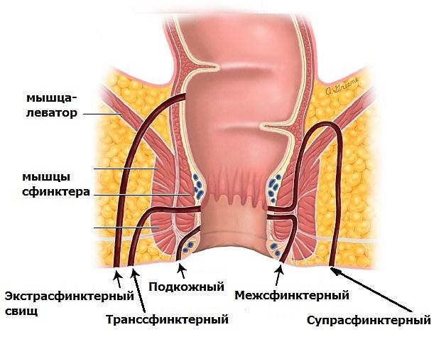 Лечение позвоночной грыжи в санатории в башкирии