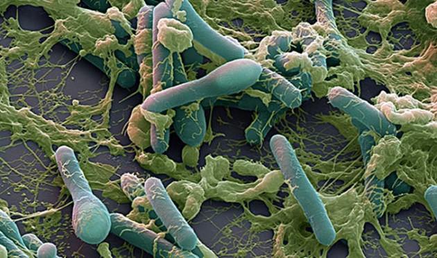 Споры и вегетативные формы Clostridium botulinum