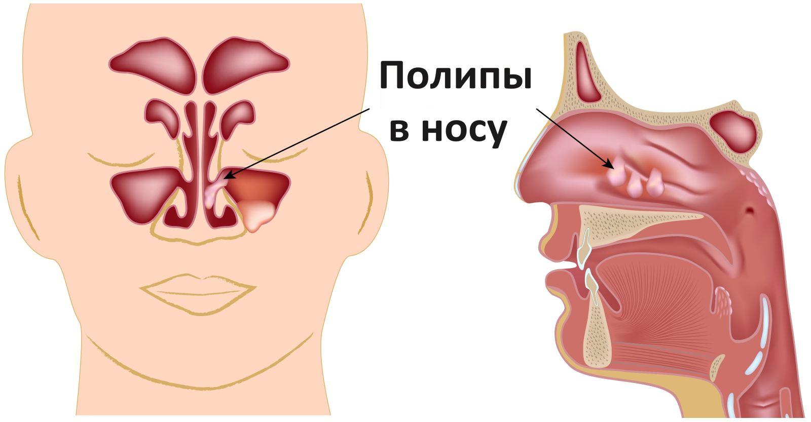 Полипы в носу симптомы и лечение