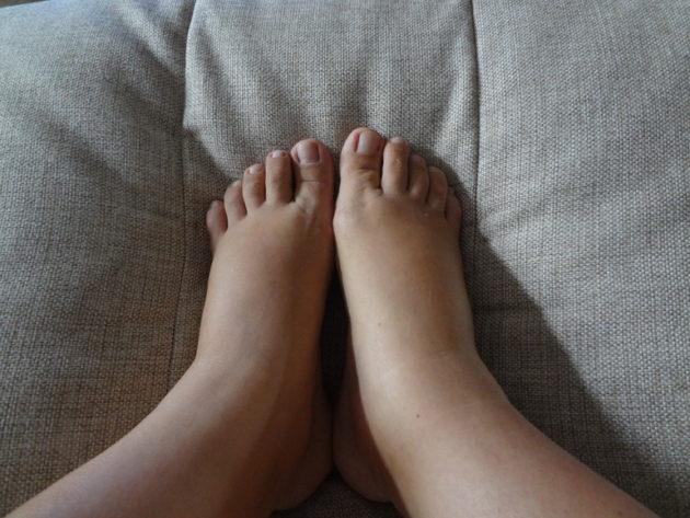 Отёки ног у беременной