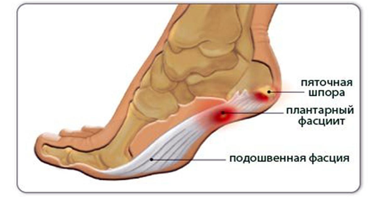 Диета при геморроидальных шишках