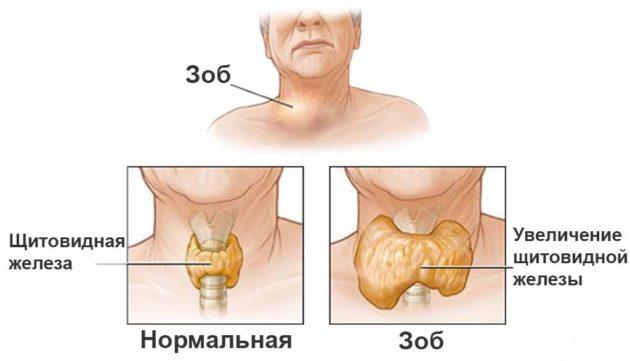 Схема зоба щитовидной железы