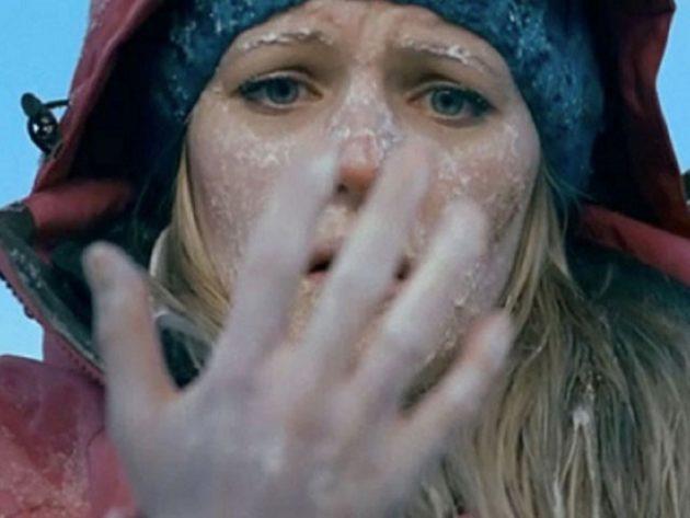 Девушка обморозила руки