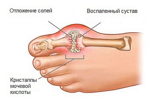 Подагрический артрит (схема)