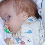 Ребёнок с гидроцефалией