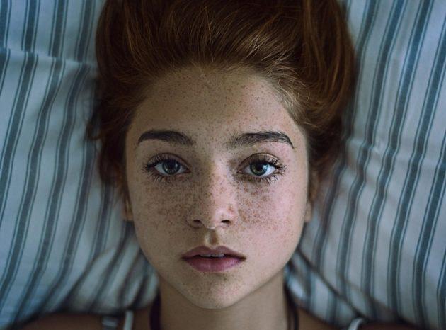 Веснушки на лице девушки