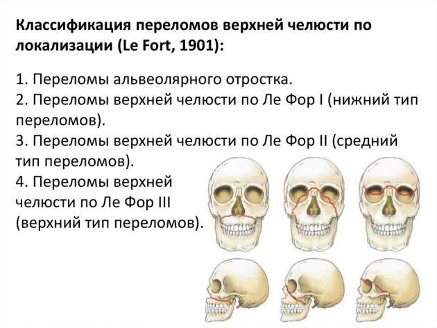 Переломы лицевого черепа (схема)