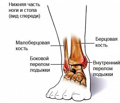 Переломы лодыжек (схема)