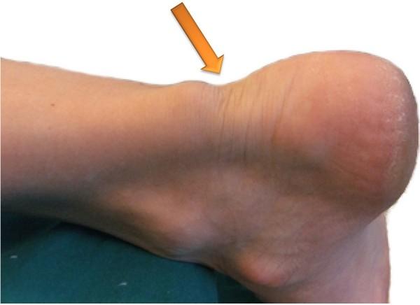 Западение в области ахиллова сухожилия